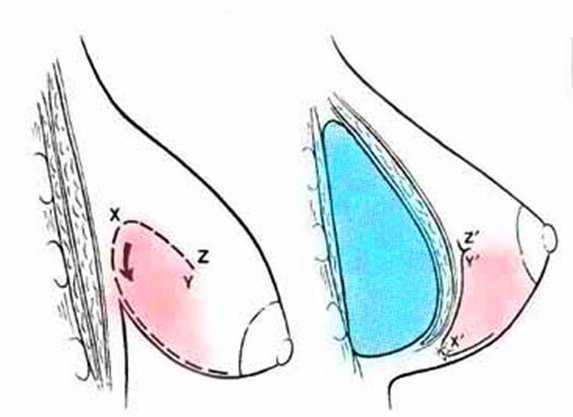 seno tuberoso