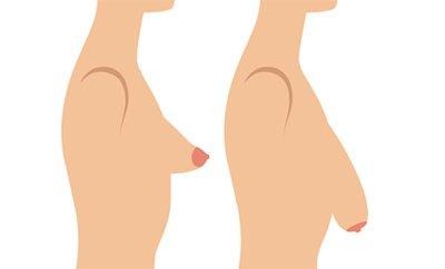 mammella tuberosa