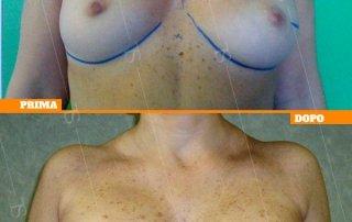 ricostruzione mammaria oncologica