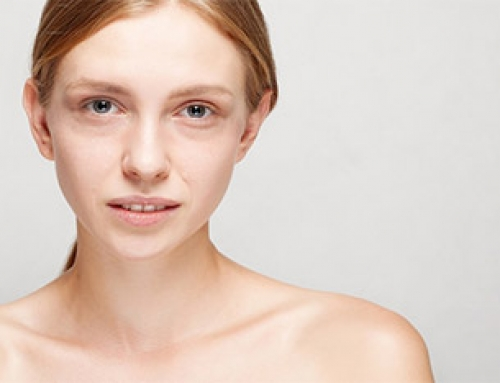 Occhi nuovi col filler: ecco come correggere le occhiaie