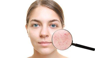 Ricostruzione dermatologica a seguito di cicatrici e acne