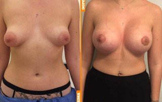 seno tuberoso caso 7