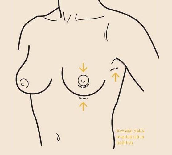 cicatrice mastopessi additiva
