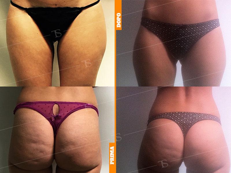 Lipofilling Glutei Brazilian Butt Lift Dr Tommaso Savoia